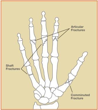 Hand Fracture Treatment Carolina Hand Sports Medicine Asheville Nc