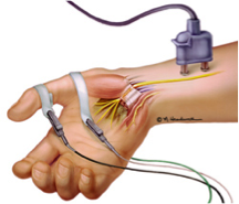 NERVE CONDUCTION STUDIES Illustration