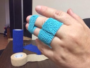broken finger treatment